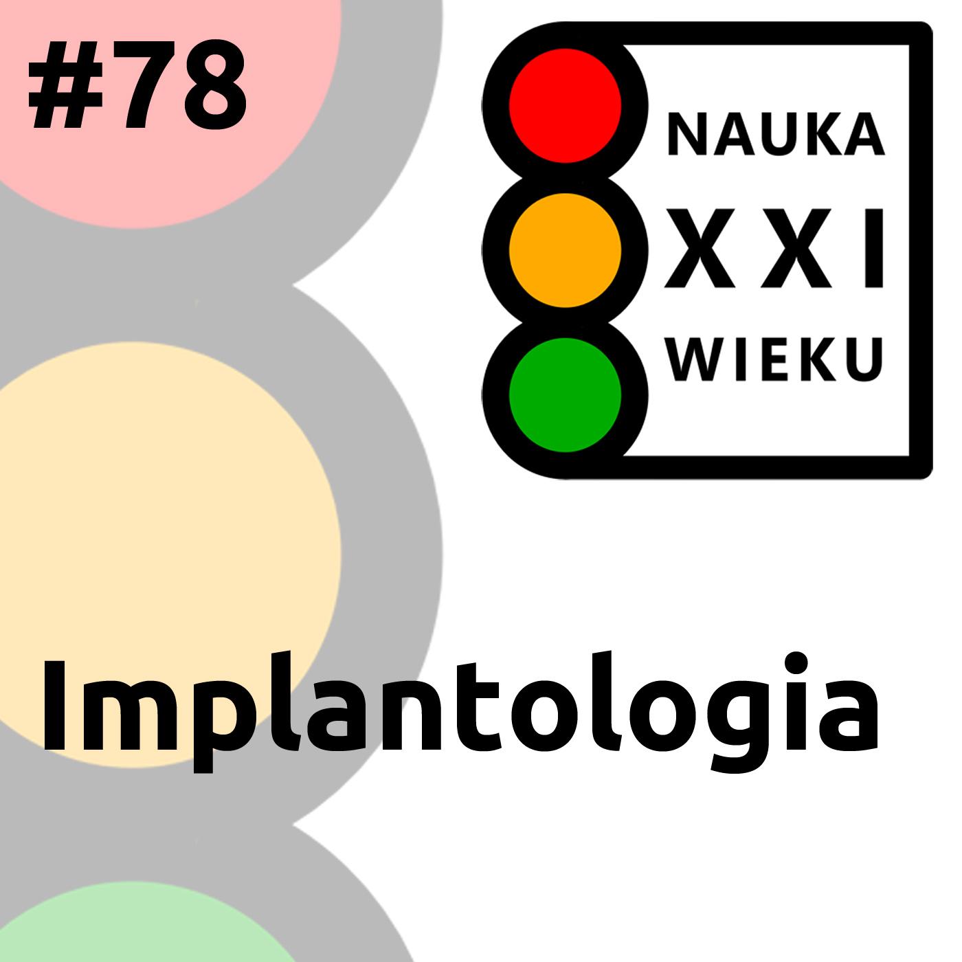#78 - Implantologia